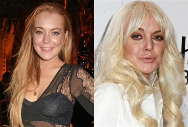 Nhan sắc hiện tại xuống cấp thê thảm, già nua như phụ nữ 40 tuổi đặc biệt là gương mặt biến dạng do di chứng của phẫu thuật thẩm mĩkhiến cho ai cũng cảm thấy nuối tiếc cho một tài năng.