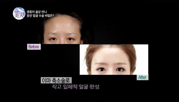 Các bác sĩ đã thu nhỏ lại phần trán và phẫu thuật mắt.