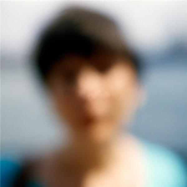 Thị lực suy giảm, mắt mờ: Một trong những biểu hiện dễ nhận thấy ở căn bệnh đột quỵ đó là mắt nhòe (nhìn một vật thành hai), mờ, hoặc mất thị lực ở một bên mắt.