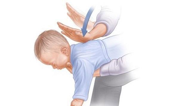 Trong tình trạng nguy cấp cần phải sơ cứu gấp, bạn có thể đặt em bé nằm trên 2 chân mình, lưng hướng lên trên, đầu hướng xuống dưới, sau đó dùng lực ấn vào phần lưng trẻ.