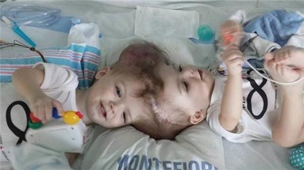 Từ khi sinh ra, hai đứa bé kháu khỉnh này chẳng may dính liền với nhau phần đầu.