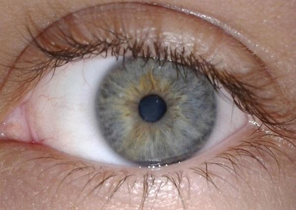 """#1 Nếp gấp """"bí hiểm"""" đó chính là mi mắt của chúng ta đấy. (Ảnh: Internet)"""