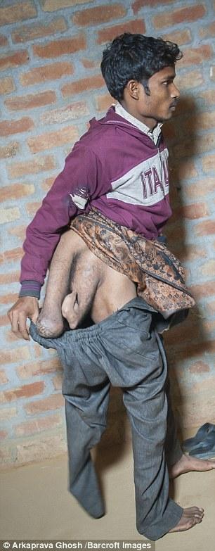 Các bác sĩ cho biếthai chân thừa của Arun không thể cắt bỏ vìnguy hiểm đến tính mạng.