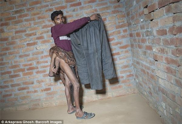 Suốt bao năm qua Arun luôn thấy tủi thân và tuyệt vọng vì sự bất bình thường của mình.