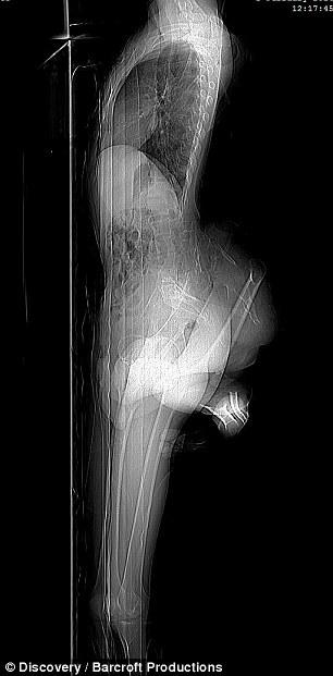 Bác sĩ Hermant Sharmant đã phát hiện anhcòn có một xương chậu thứ 2 và hiện đangnghiên cứu điều trị cho anh.
