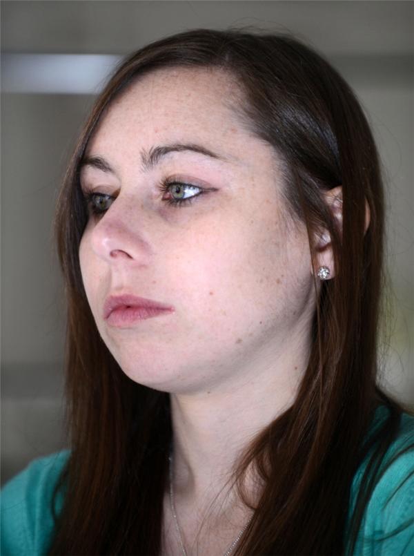 Căn bệnh trên khiến cô vật vã, nôn ói mỗi ngàysuốt 5 năm qua.