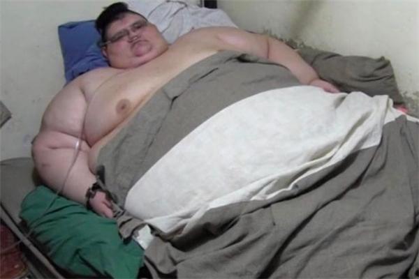 Người đàn ông béo nhất thế giới hy vọng