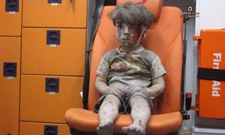 Hình ảnh của Omran 5 tuổi ngồi trên xe cứu thương sau khi được cứu khỏi đống đổ nát ở Aleppo, Syria.