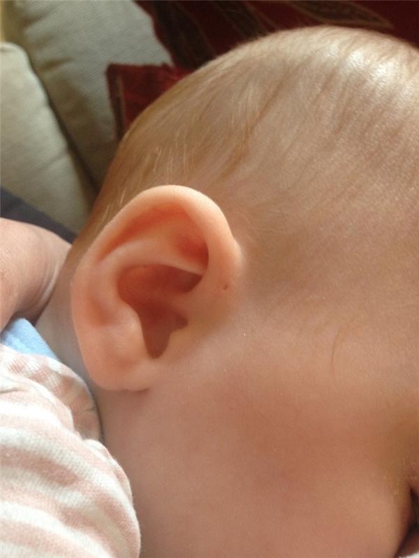 Còn theo các nhà khoa học, rò luân nhĩ xuất hiện nhiều hơn ở bên tai phải.
