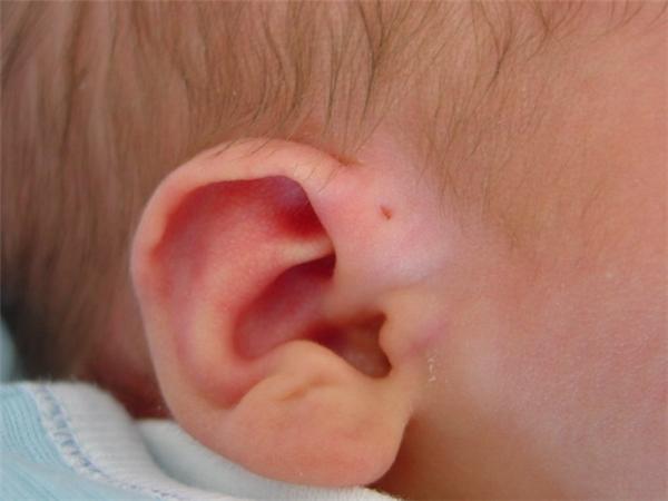 Trong khi mang thai, một khiếm khuyết xảy ra trong quá trình hình thành cung hầu họng vào tuần thứ 6 của thai kỳ sẽ để lại chiếc lỗ nhỏ này trên tai thai nhi.