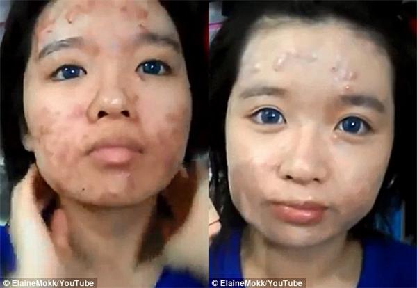 Cô nàng mặt mụn gây náo loạn MXH đã lột xác ngoạn mục