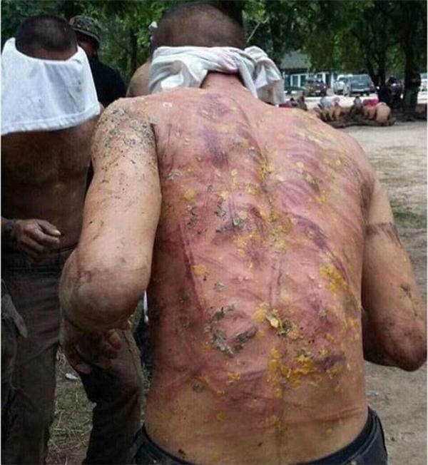Vết roi chằng chịt trên lưng người lính gây phẫn nộ.