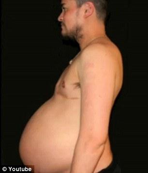 Bí mật về người đàn ông mang thai đầu tiên trên thế giới