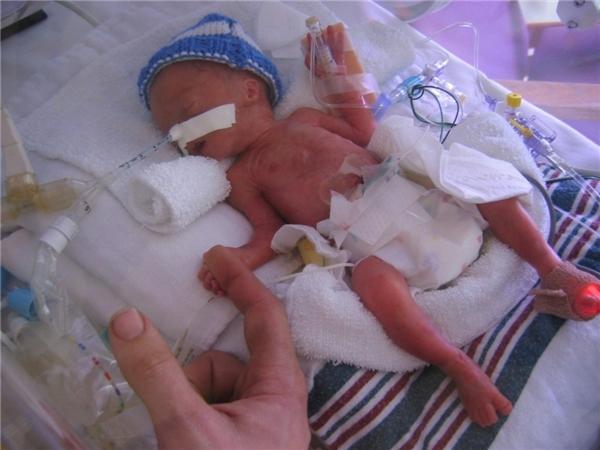 Đây thực sự là món quà ý nghĩa dành cho những em bé sơ sinh.