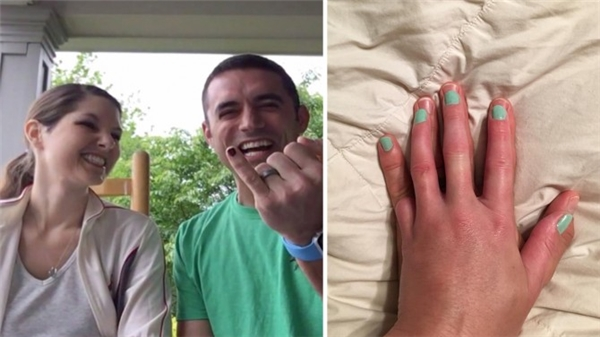 Matt đã đi tìm nụ cười về cho Libby bằng việc sơn ngón tay út và đặt bàn tay vợ lên bàn tay mình.(Ảnh: Internet)