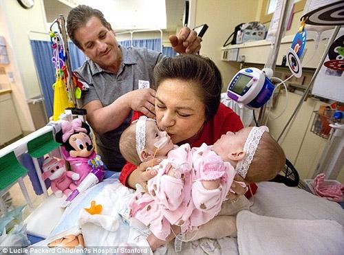 Eva và Erika là cặp song sinh bị dính liền cơ thể từ khi mới chào đời.