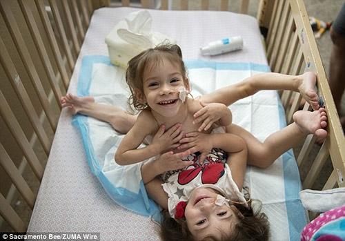 Eva và Erika dính nhau từ phần xương ức xuống phần xương chậu.