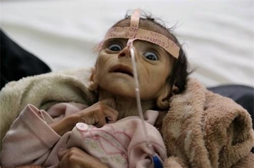 Rơi nước mắt với những nạn nhân đáng thương nhất của chiến tranh