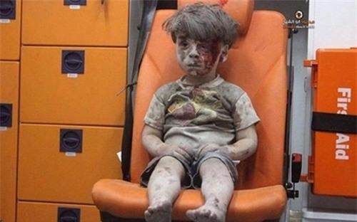 Gương mặt thất thần của cậu bé 5 tuổi gây chua xót cho không ít người.