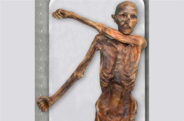 Cái xác đóng băng của Ötzi sau khi được khai quật.