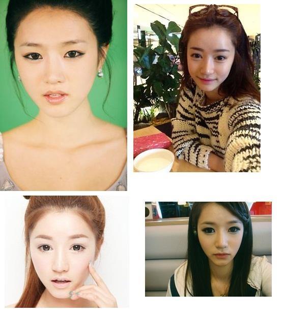 Trướcđây Park Sora từng bị tốđã phẫu thuật thẩm mĩ.