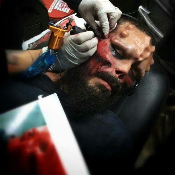 Henry Rodriguez trong lúccuộc phẫu thuật đầy phức tạp được thực hiện