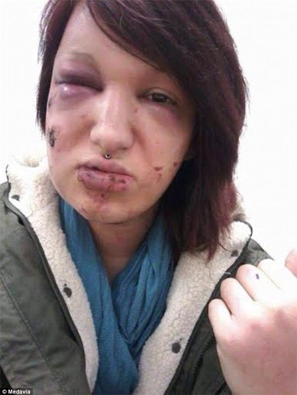 Melody với khuôn mặt đầy những sẹo vĩnh viễn không thể xóa mờ sau khi bị người yêu cũ tấn công