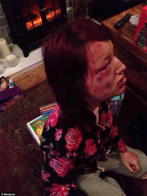 Cô bị sang chấn tâm lý và phải tìm đến một trung tâm hỗ trợ để điều trị, uống đủ thứ thuốc.