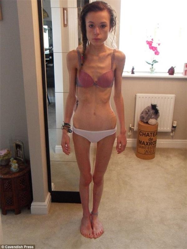 Katy Hogg là một trường hợp điển hình của việc giảm cân quá đà.
