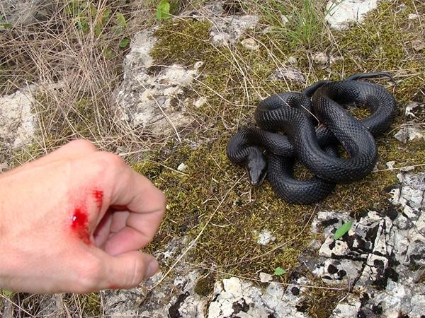 Xử lí khi bị rắn độc cắn.