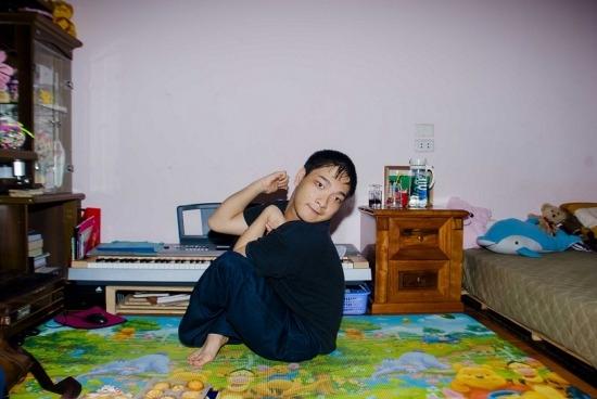 Dù đã 24 tuổi nhưng Hùng vẫn phảimang thân hình nhỏ bé và yếu ớt. (Ảnh: Internet)
