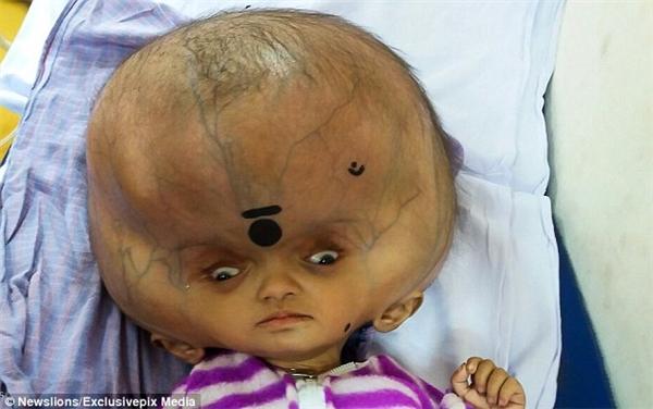 Cuộc đời trớ trêu, Mrityunjay dù chỉ mới 7 tháng tuổi nhưng đã mắc phải chứng não úng thủy khiến đầu em bị đột biến, nở to một cách kì lạ.
