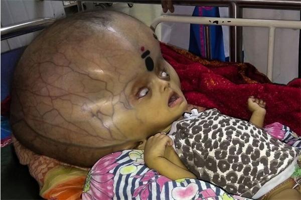 Từ lúc được đưa vào bệnh viện hồi tháng 11 năm ngoái, não của em đã tích tụ nhiều dịch khiến vòng đầu chạm tới con số 96 cm. Đặc biệt, sức khỏe của Mrityunjay khi đó cũng ngày một yếu dần khiến bố mẹ và người thân không khỏi lo lắng và xót thương.