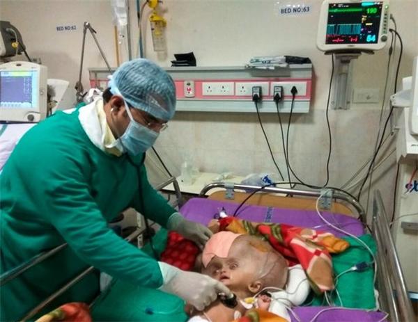 Cảm thông với gia đình Mrityunjay, các bác sĩ đến từ hiệp hội y tế và khoa học Ấn Độ (AIIMS) đã tài trợ 6.000 bảng Anh (khoảng hơn 166 triệu VNĐ) cho ca phẫu thuậthút dịch não nhằm mang phép màu đến cho cậu bé chưa đầy 10 tháng tuổi này.
