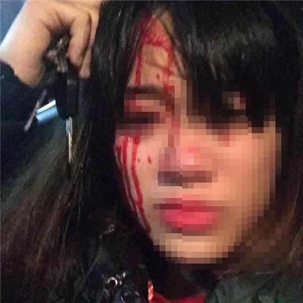 Nạn nhân bị đánh chảy máu đầu ở gần Big C Long Biên.
