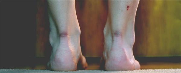 Theo nghiên cứu được công bố trên tạp chí Science, các nhà khoa học mới đây đã tìm ra phương pháp để phục hồi những vết thương mà không lo để lại sẹo.
