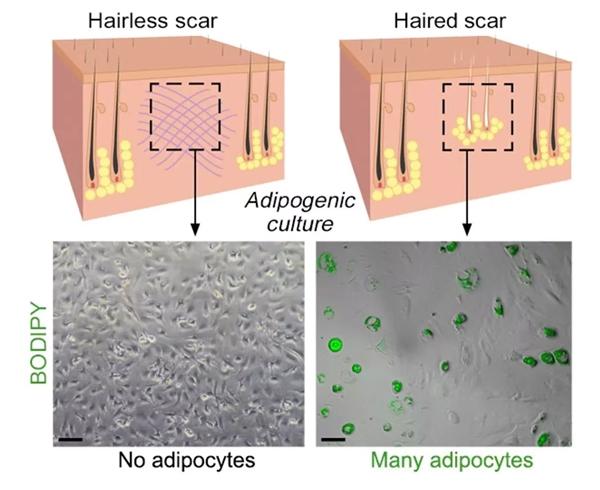 """""""Các nang lông sẽ được kích thích để phục hồi trước tiên. Sau đó, chúng sẽ đưa ra tín hiệu dưới dạng protein, để cơ thể tích chất béo vào vết thương, qua đó da liền lại mà không có sẹo.""""- Bác sĩCotsarelis chia sẻ."""
