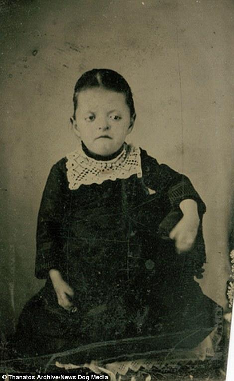 Cô gái trẻ trên ảnh mắc hội chứng Apert, một chứng bệnh xương cứng sớm cục bộ và đường thở hẹp vô cùng hiếm gặp.