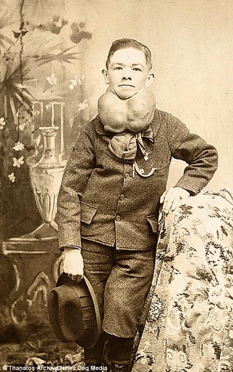 Những biến chứng của các căn bệnh ác tính cũng không nằm ngoài sự quan tâm của khán giả thời ấy, điển hình là cậu bé mắc chứng ung thư hạch bạch huyết hay chàng trai với bệnh cường giáp trạng (Hyperthyroidism).