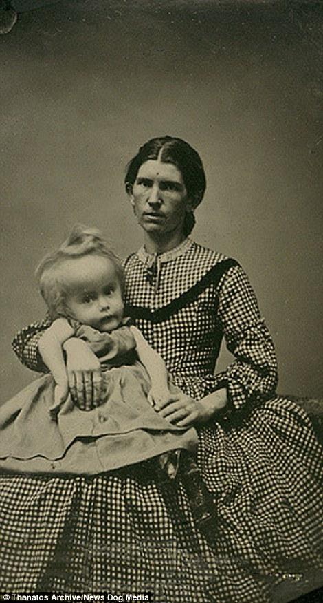 Một người mẹ chụp ảnh cùng cô con gái có chiếc đầu ngoại cỡ.