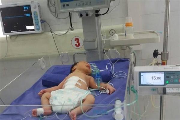 Em bé từng được bác sĩQuốc Hùngcứu chữa do mắc bệnh lộ tạng ngoài thành bụng.(Ảnh: Internet)