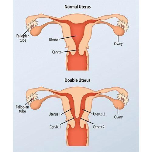 Bà mẹ có 2 cơ quan sinh sản với chức năng hoạt động như nhau.