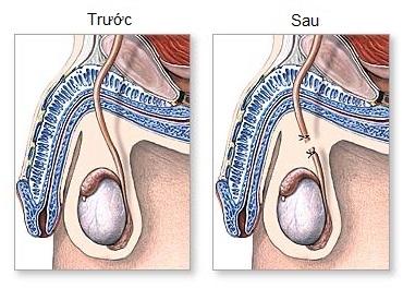 Phương pháp triệt sản thắt ống dẫn tinh trên nam giới.