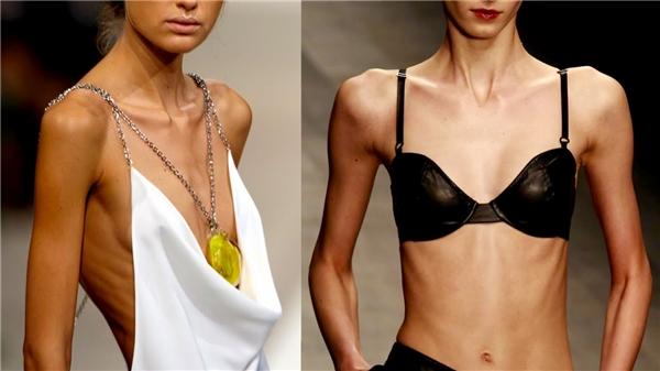 Dù biết hậu quả như thế nào,các người mẫu nữ vẫn quyết có được vóc dáng size 000 mới hi vọng xuất hiện trên sàn diễn.