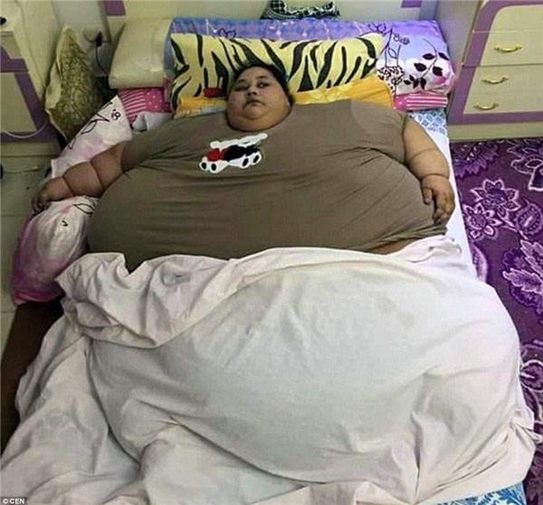 Eman nặng 500kg và liệt giường suốt 25 năm nay do bệnh phù chân voi.