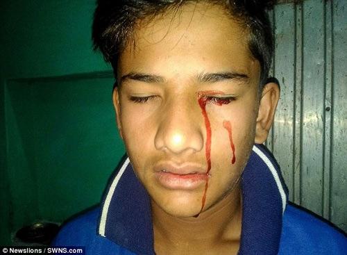 Căn bệnh lạ khiến cậu bé Akhilesh gặp không ít mặc cảm.
