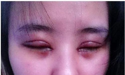 Phương pháp nhấn mí để tạo mắt hai mí.