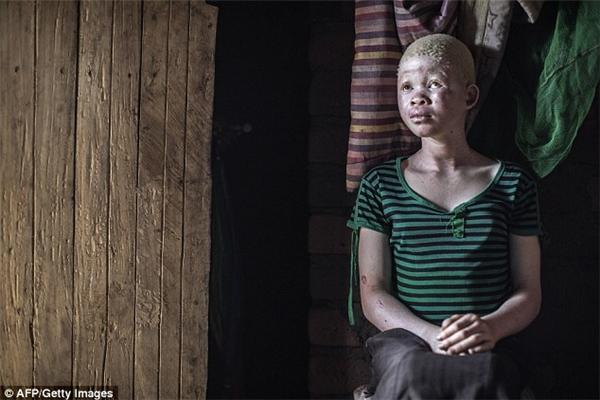 Catherine Amidu, 12 tuổi, đang ngồi trong nhà mình ở Nkole, quận Machinga.