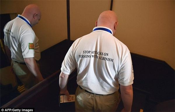 """Chiếc áo với dòng khẩu hiệu: """"Dừng các cuộc tấn công đối với người bạch tạng"""" của Hiệp hội"""