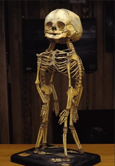 Bộ xương của một cặp sinh đôi liền đầu và ngực được trưng bày trong bảo tàng.